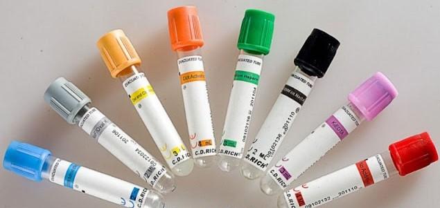 Importancia Del Correcto Orden Y Llenado De Los Tubos De Recolección De Sangre Kalstein